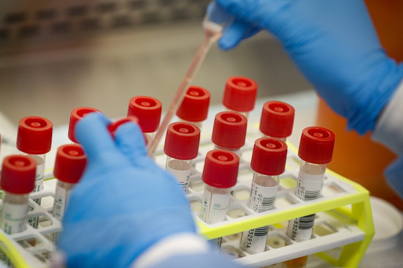No universal playbook for virus testing in pro sports
